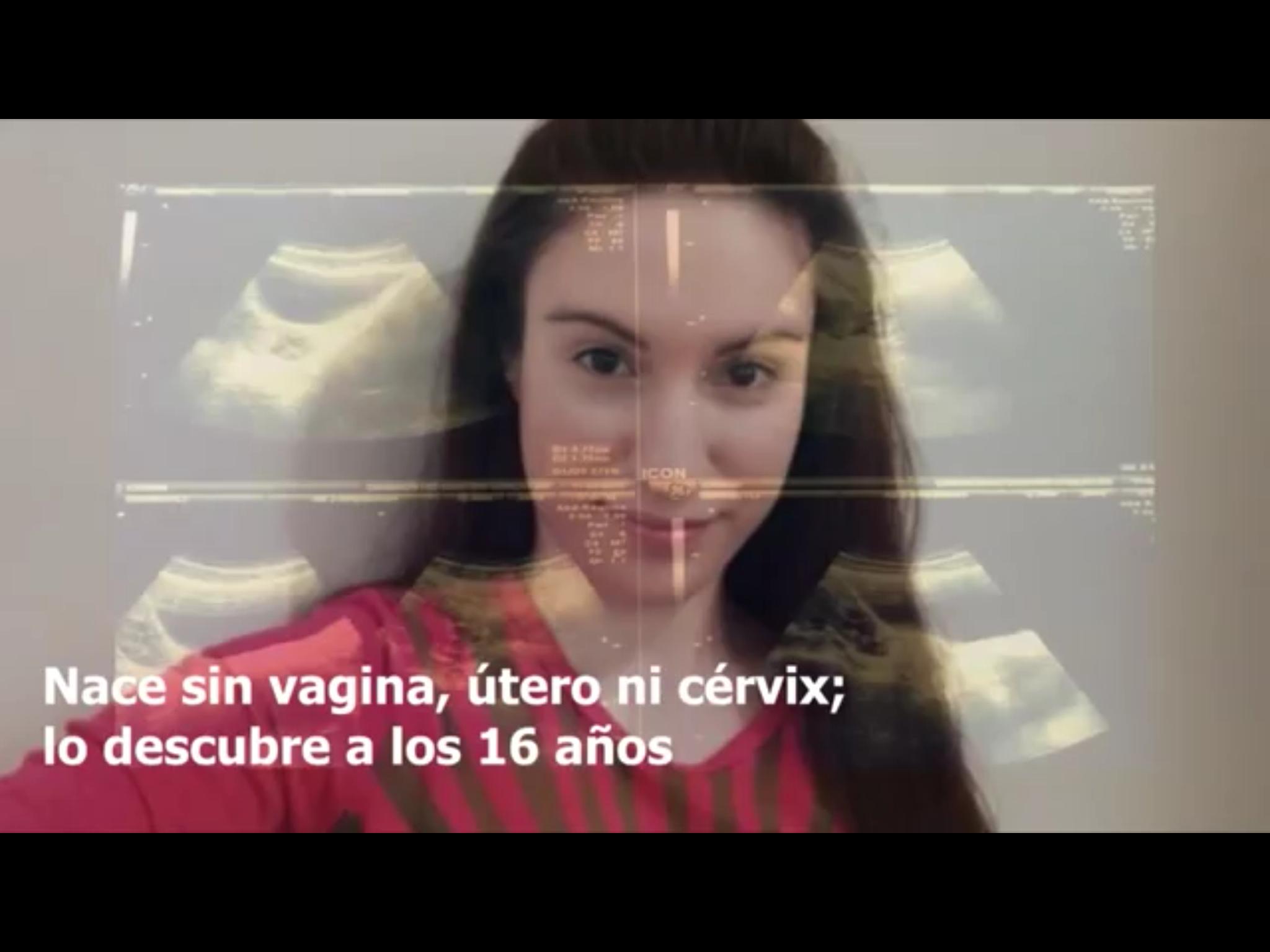 VIDEO: Nace sin vagina, útero ni cérvix; lo descubre años después