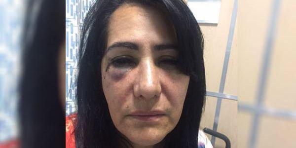 VIDEO: Esposa de exdiputado priista fue violada en camión de ETN