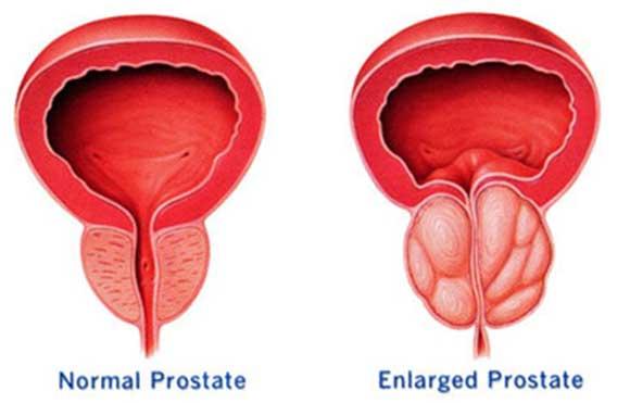 Cura la próstata, diabetes, el colesterol y la gastritis con este efectivo remedio natural