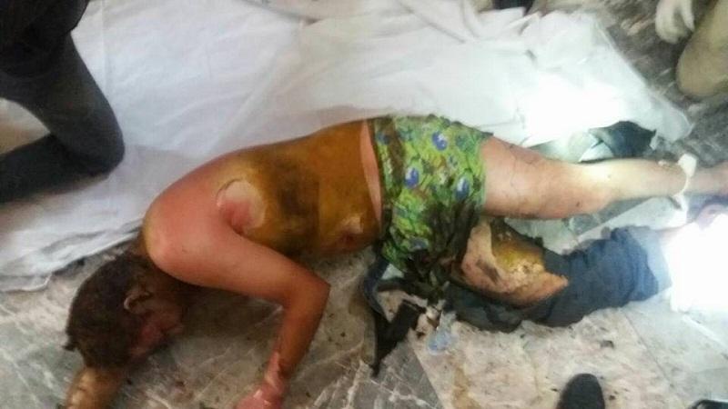 Hombre se baña en gasolina y se prende fuego en San Juan de los Lagos