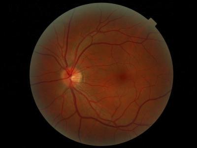 Una nueva terapia génica promete curar la ceguera
