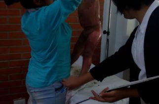 En Aguascalientes niño sufre quemaduras en su cuerpo