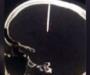 Después de un dolor de cabeza le extraen un clavo del cráneo a un hombre en China