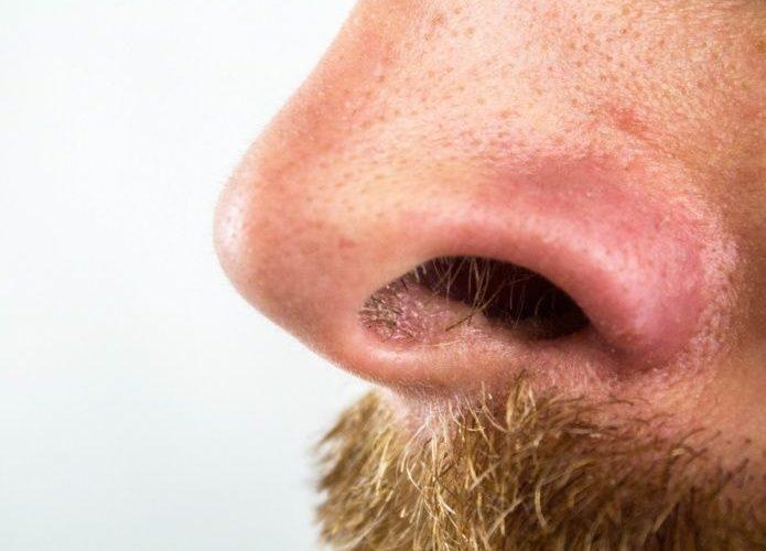 Cáncer de nariz existe, estos son los síntomas y factores de riesgo