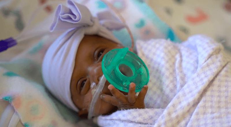 Este es el bebé prematuro sobreviviente más pequeño del mundo