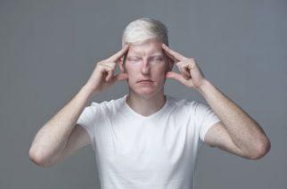 ¿Por qué nacen personas albinas?