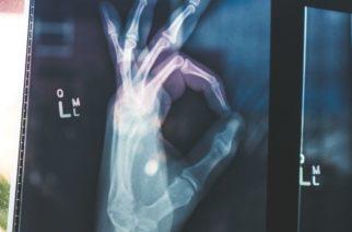 ¡Adiós al yeso! Crean otro material para reparar huesos rotos