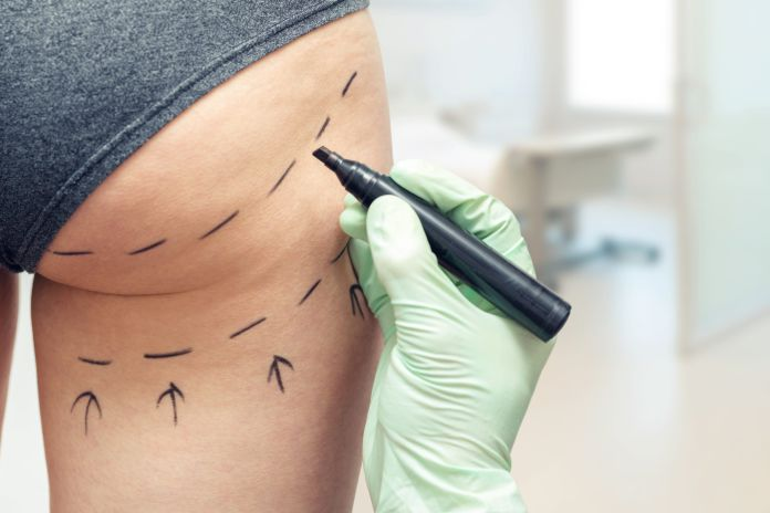 El levantamiento de glúteos es la cirugía estética más peligrosa, según especialistas