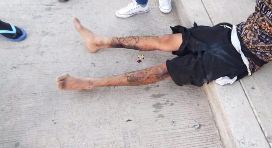 Un hombre resultó con quemaduras por mal manejo de pirotecnia en Aguascalientes