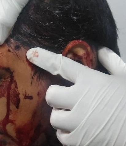 Menor de edad lesionado al manipular una pistola de diábolos