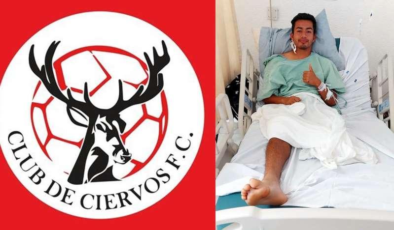 Futbolista mexicano de Liga Premier pierde una pierna  por descarga eléctrica