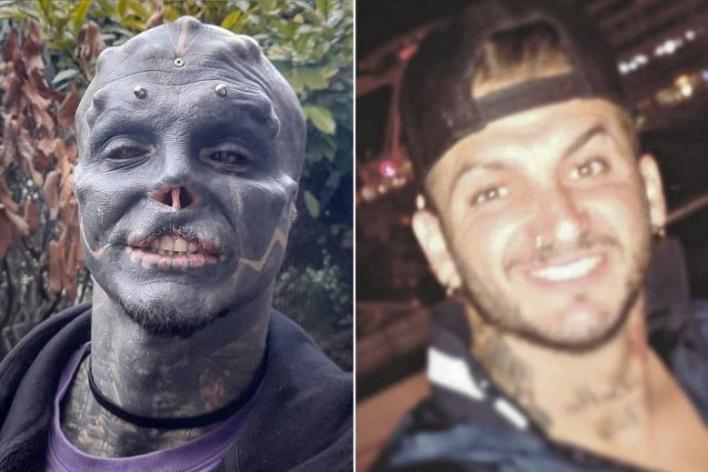 """Hombre se extirpa nariz, labio y orejas para ser un  """"alienígena negro"""""""