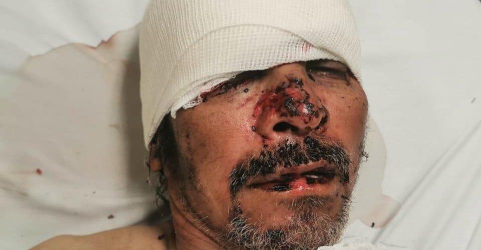 Lo atropellaron en la 45 sur y buscan a familiares en Aguascalientes