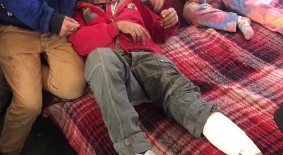 Pitbull ataca a niño de 8 años en Lomas del Ajedrez