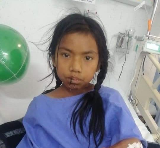 Piden apoyo para Rosita tras haber sido atropellada