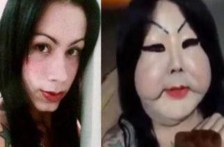 Mujer trans se inyectó silicona industrial y se desfiguró la cara